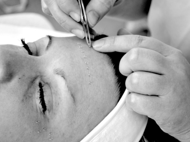 Image of woman receiving facial acupuncture with tiny intradermal needles on her forehead.